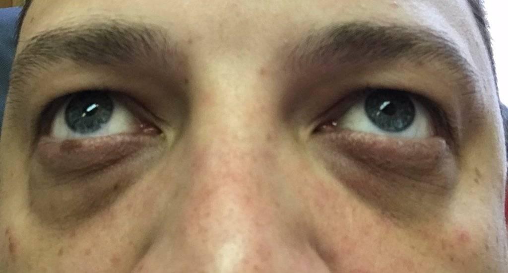 Синяки под глазами у мужчин: причины и лечение, что за болезнь, как избавиться?