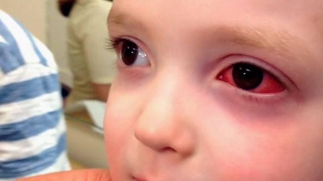 Что делать, если у ребенка воспалился глаз?