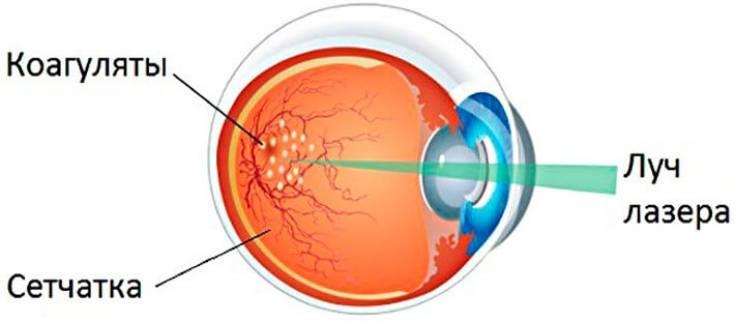 """Презентация на тему: """"лазерные методы лечения глаукомы профессор м.а.фролов."""". скачать бесплатно и без регистрации."""