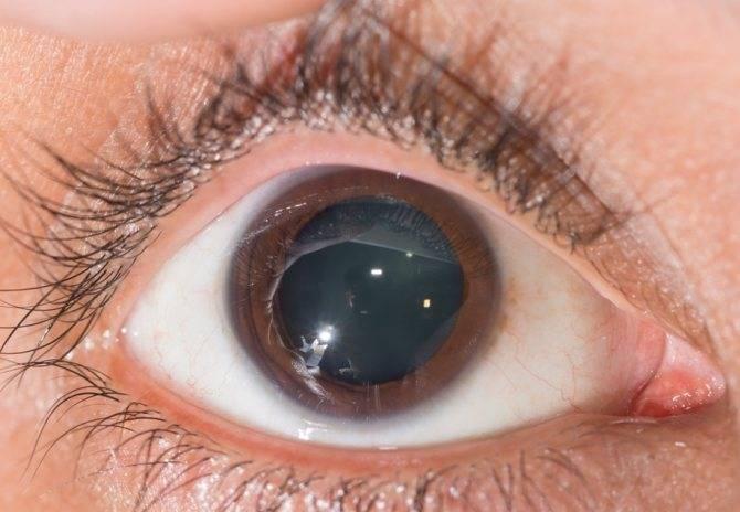 Аниридия глаз: причины, симптомы, лечение и диагностика