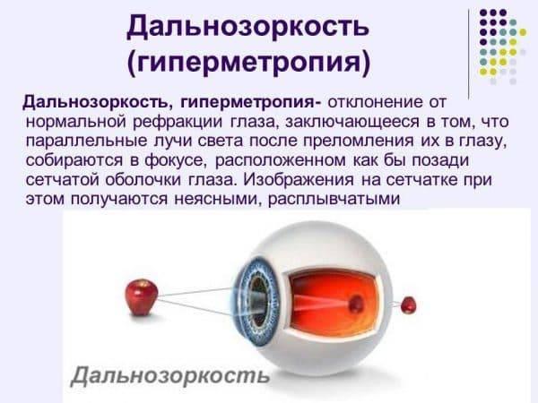 Что такое дальнозоркость (гиперметропия) слабой степени?
