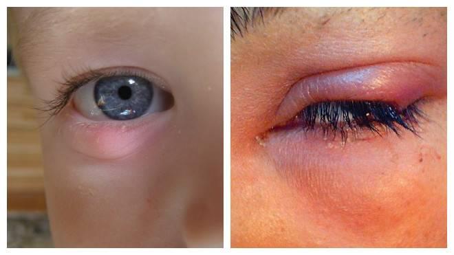 Можно ли греть ячмень на глазу: способы прогревания