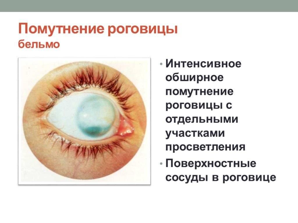 Помутнение роговицы: мутные глаза у человека, причины и лечение, при какой инфекции может развиться поражение, капли