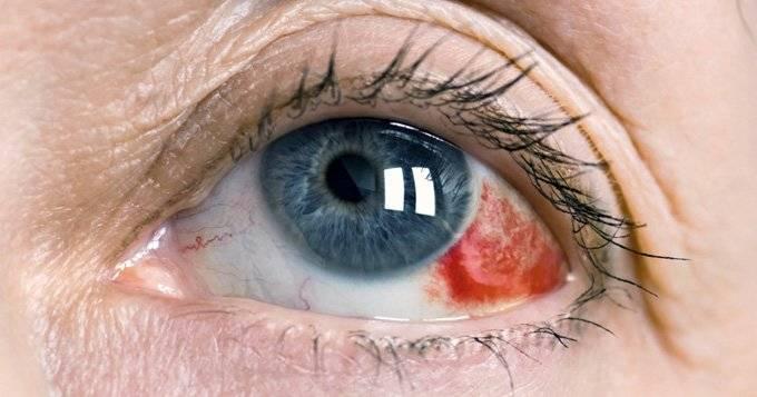 Лопнул сосуд под глазом: почему образуются синяки, что делать если на веке разорвался капилляр