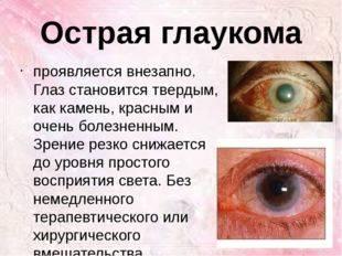 Наследственные и приобретенные болезни глаз: список заболеваний