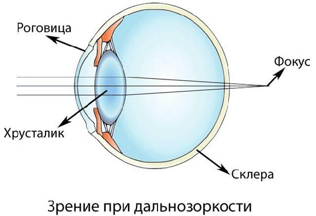 Лечение дальнозоркости – сахалинский центр микрохирургии глаза