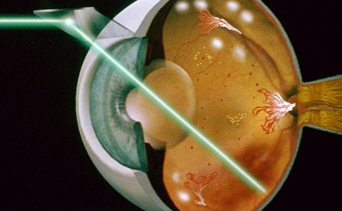 До и после лазерной коагуляции сетчатки глаза — что можно и что нельзя делать