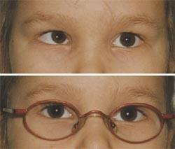 Эффективные очки при косоглазии — назначение и правила выбора