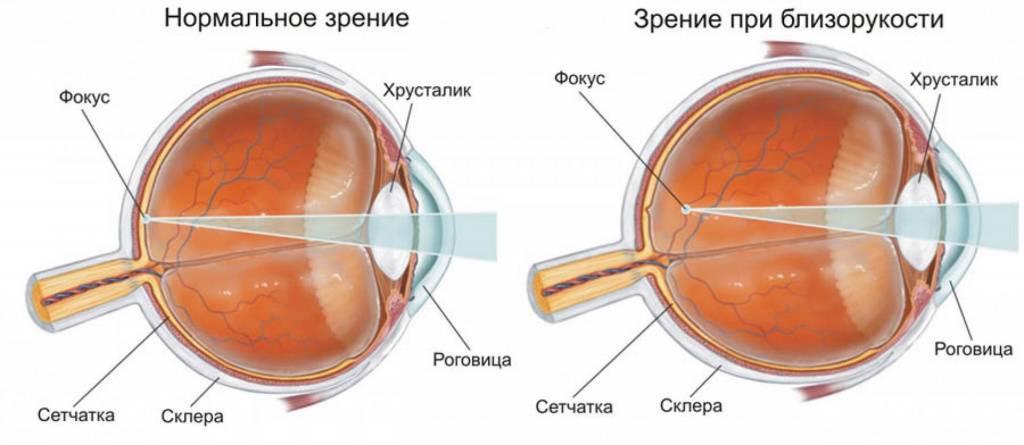 Замена хрусталика глаза при близорукости отзывы