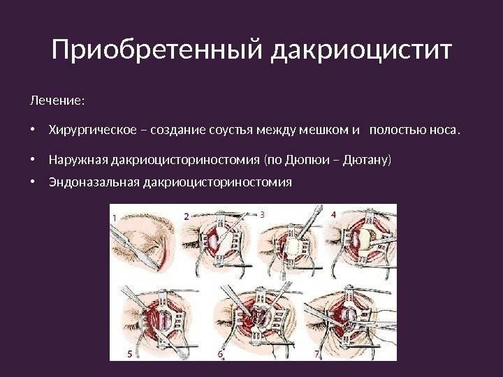 Дакриоцисториностомия: отзывы, описание методик дакриоцисториностомии