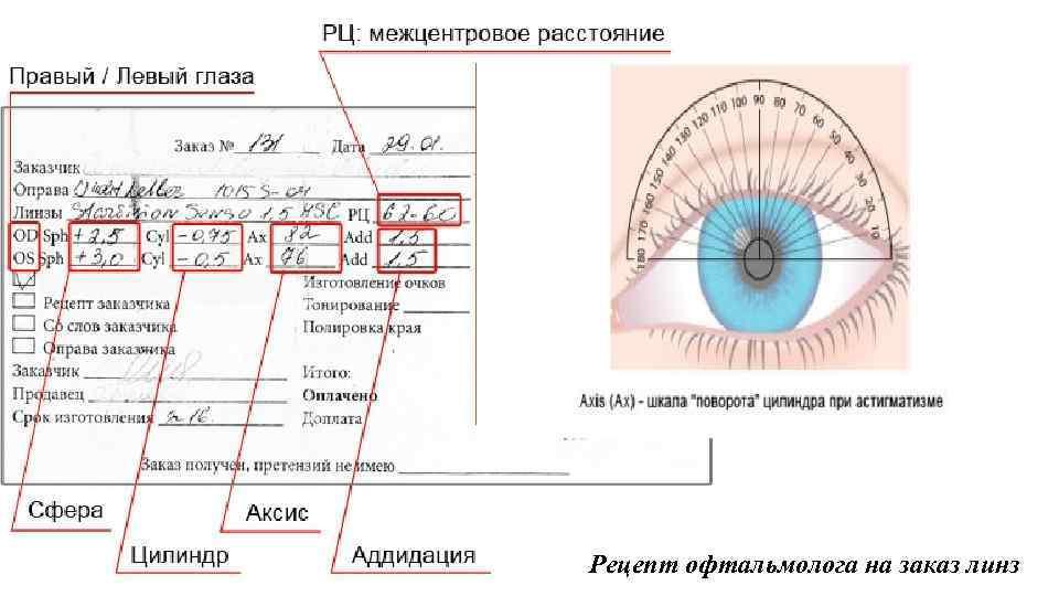 Рецепт на очки: какой глаз обозначает od, а какой os?