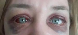 Как вызвать покраснение глаз в домашних условиях
