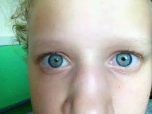 При каких заболеваниях желтеет кожа и белок глаз?