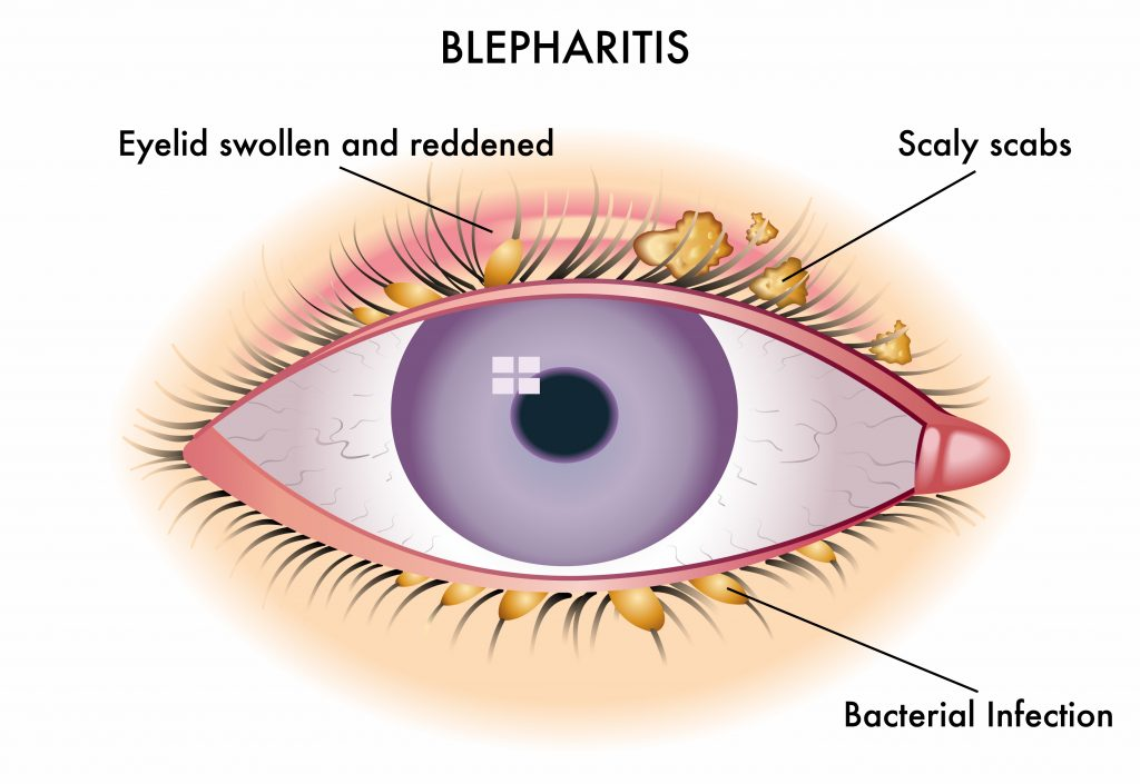 Что такое блефарит век: симптомы и лечение у взрослых и детей