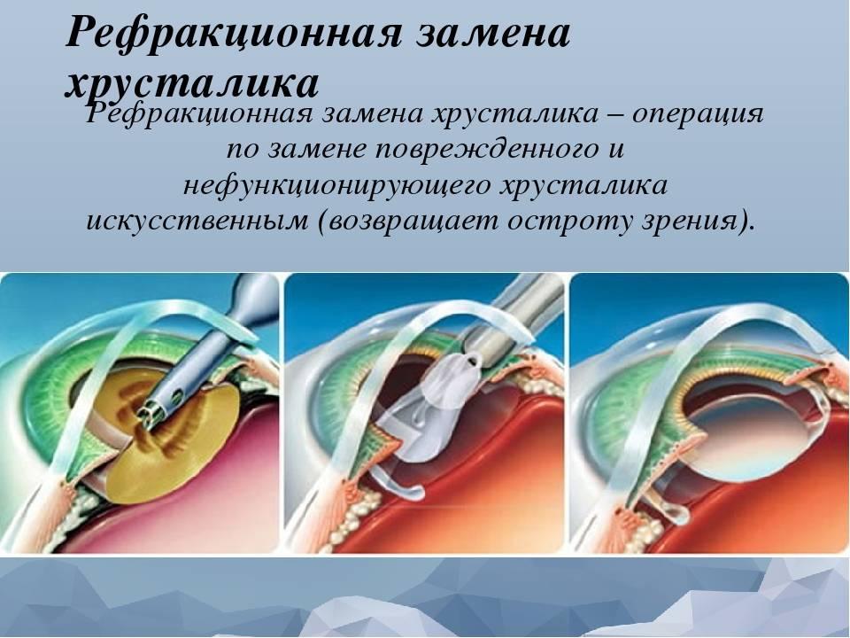 Операция катаракта замена хрусталика какой выбрать
