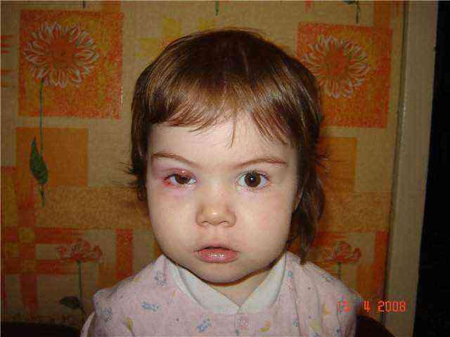 Ячмень на глазу у ребенка: причины появления, симптомы и лечение в домашних условиях