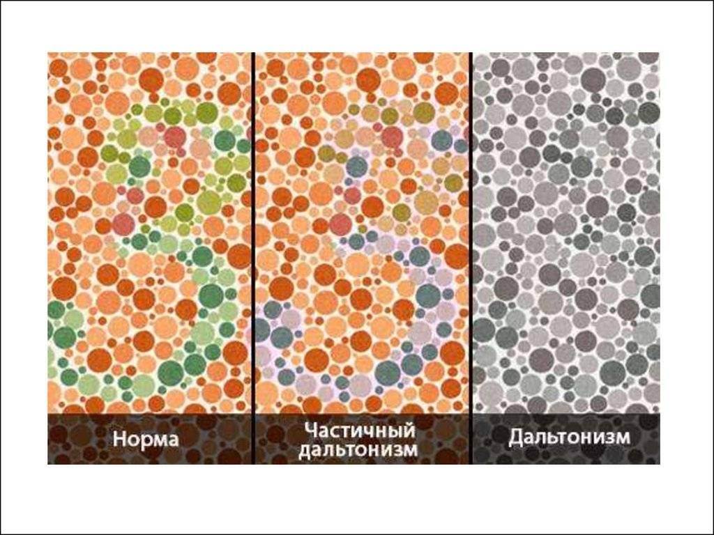 Аномальная трихромазия: типы, лечение и диагностика