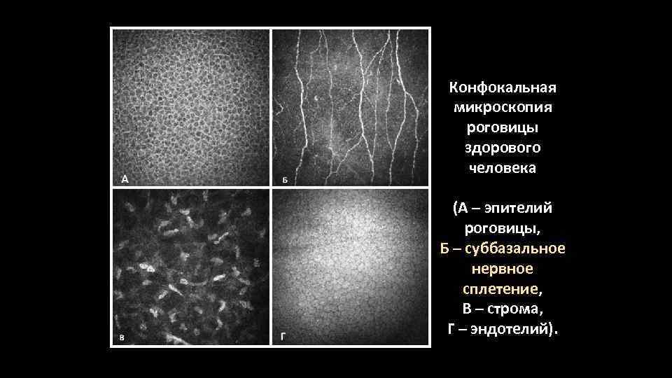 Кератопластика роговицы: описание, виды кератопластики и ход проведение операции