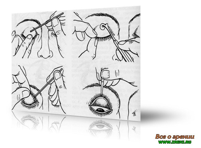Как вывернуть глазное веко. выворачивание верхнего века с помощью пальцев