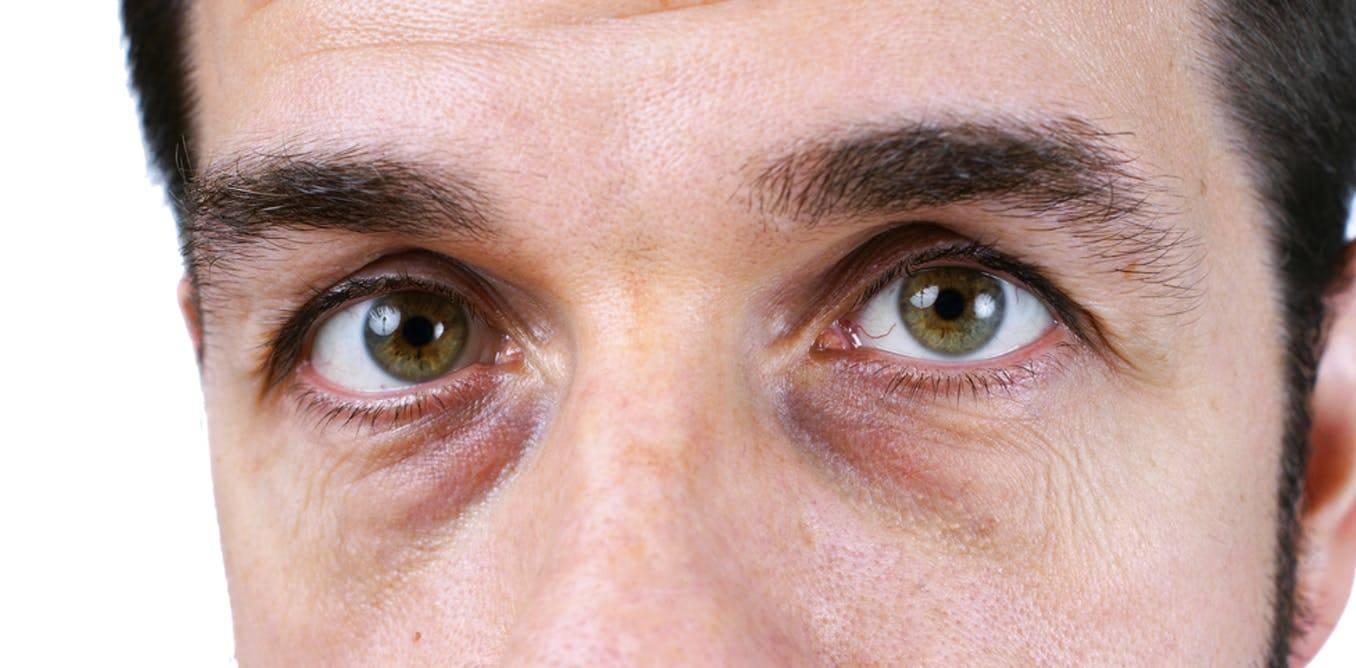Темные круги под глазами - причины и как избавиться