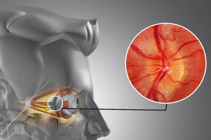 Что может вызвать боль в глазу при моргании