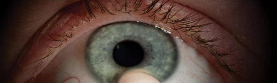 Пингвекула глаза: причины и лечение образования на глазном яблоке