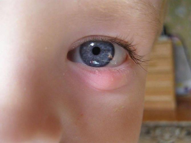 У ребенка выскочил фурункул - как лечить? - первенец - сайт для родителей