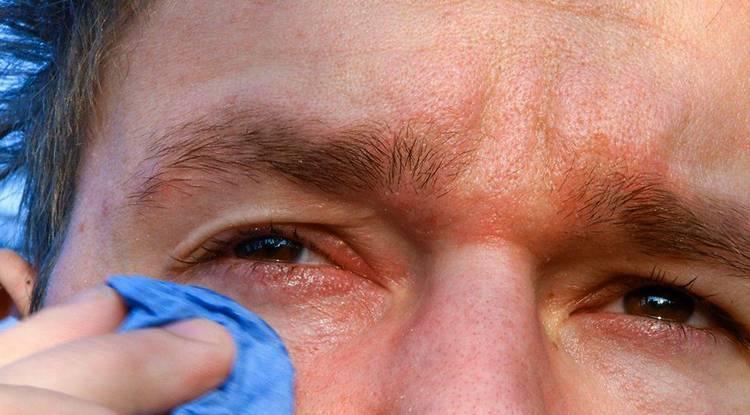 Постоянно слезится один глаз: что делать, если все время слезотечение, причины и лечение у взрослого, почему долго текут слезы