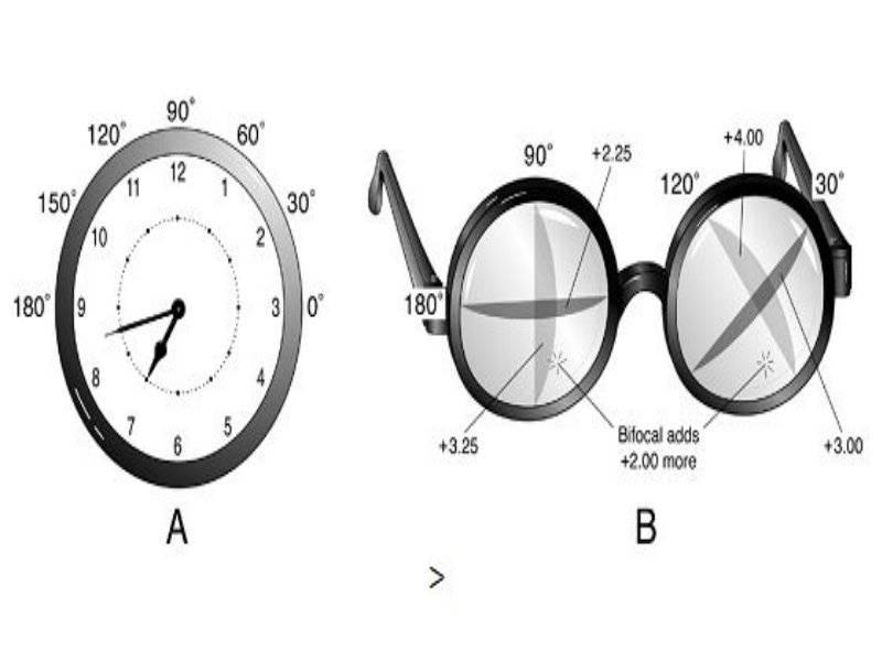 Линзы при астигматизме: торические контактные, однодневные, подбор, цветные