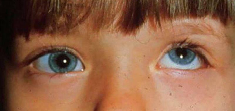 Паралитическое косоглазие: диагностика и лечение недуга — глаза эксперт