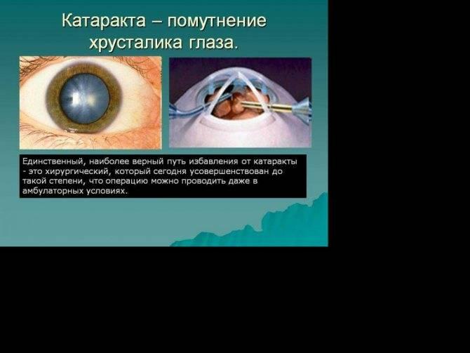 Признаки, симптомы глаукомы на ранних стадиях - подробная информация