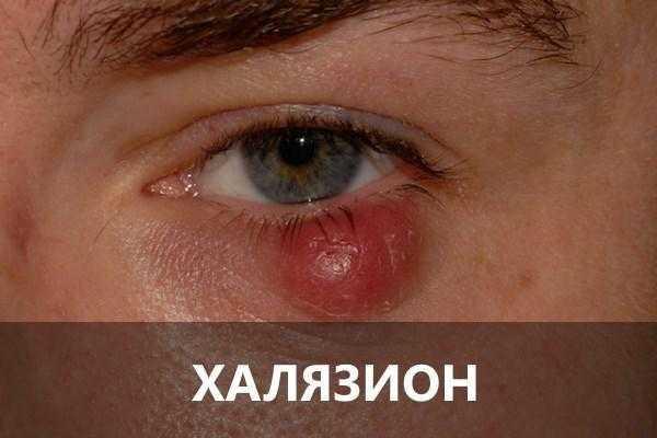 Отличия халязиона от ячменя