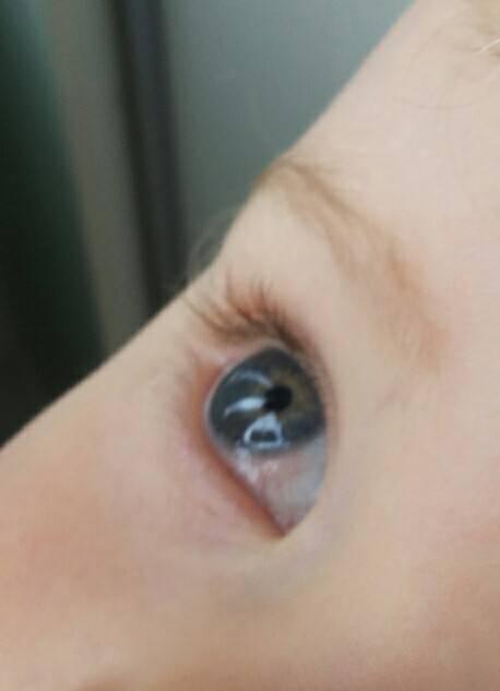 """Пятно на белке глаза: причины, лечение, профилактика - """"здоровое око"""""""