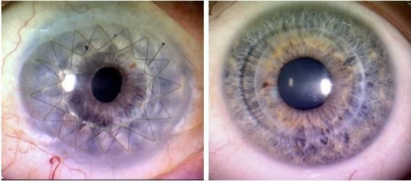 Кератопластика (операция по пересадке роговицы глаза) - подготовка, ход, реабилитация