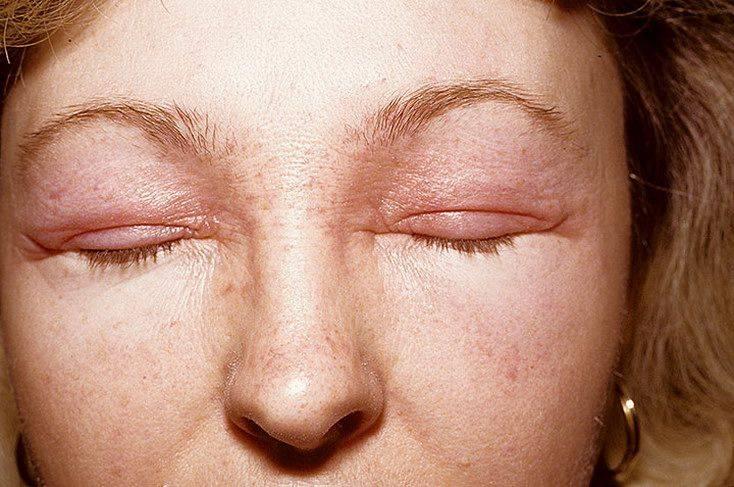 Перхоть на ресницах (блефарит): причины, симптомы и лечение