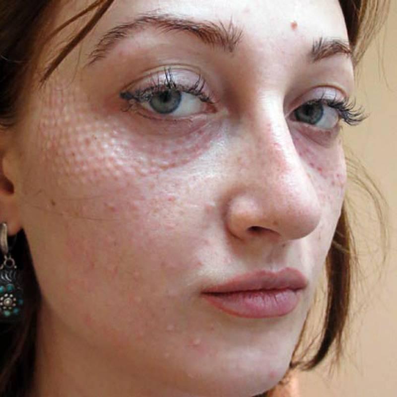 Отеки после уколов гиалуроновой кислоты под глаза