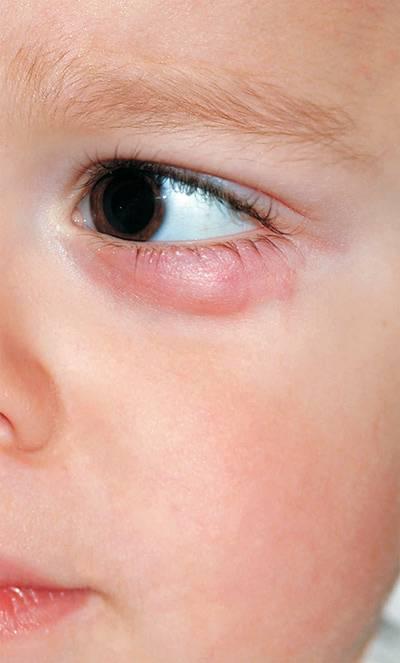 Ячмень на глазу у ребенка: как лечить быстро дома, чем лечить ячмень на глазу у ребенка - комаровский | медицинский портал spacehealth