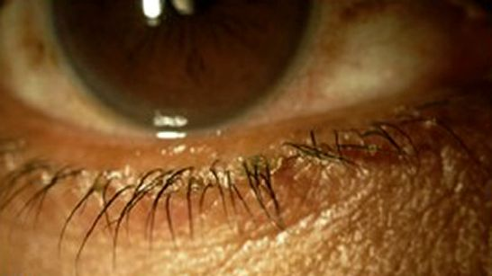 Блефарит: симптомы и лечение у взрослых, причины воспаления, что это такое (фото)