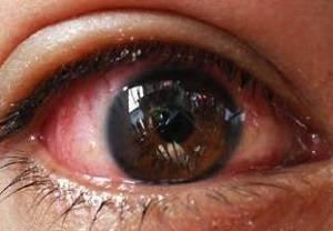 Блефароконъюнктивит: виды заболевания, симптомы, диагностика, лечение