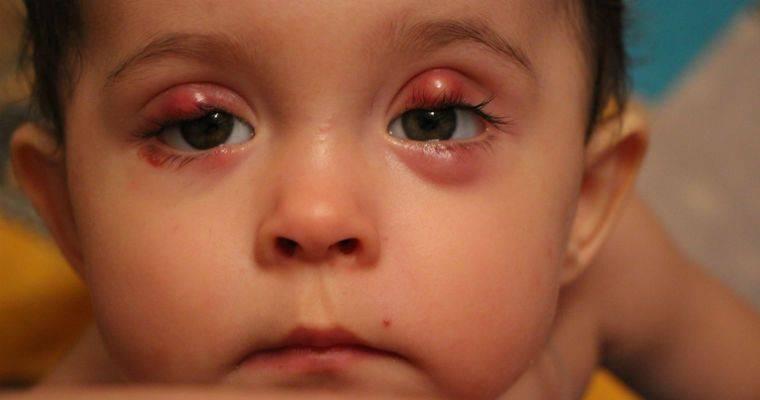 Халязион нижнего и верхнего века у детей (31 фото): причины возникновения и лечение болезни, операция по удалению