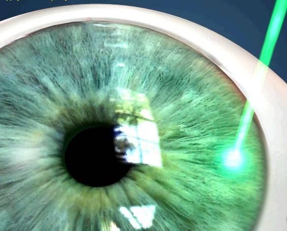 Иридэктомия: лазерная операция при глаукоме и восстановление в послеоперационный период