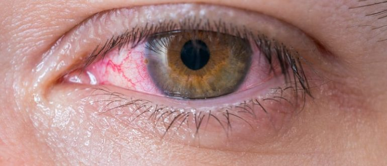 Как убрать красноту глаза народные средства