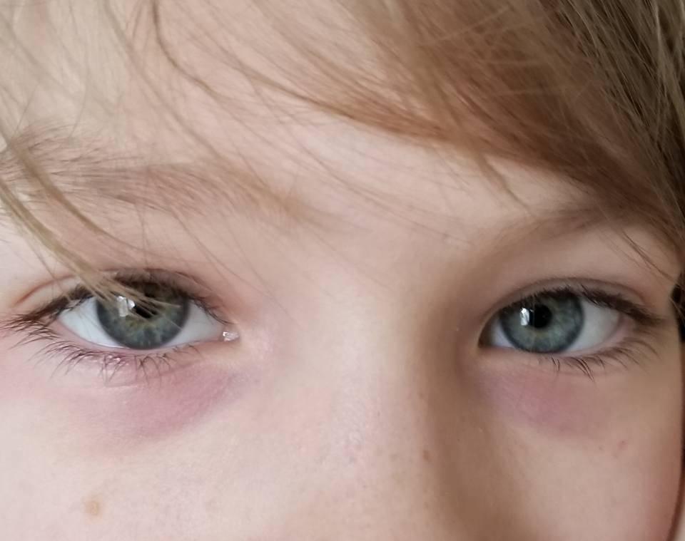 Красные круги под глазами (взрослые)