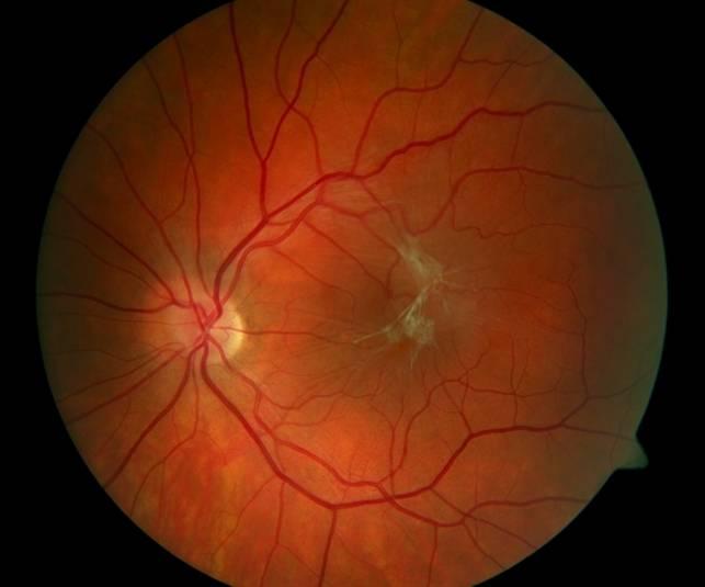 Лечение фиброза сетчатки глаза - методы эффективной терапии