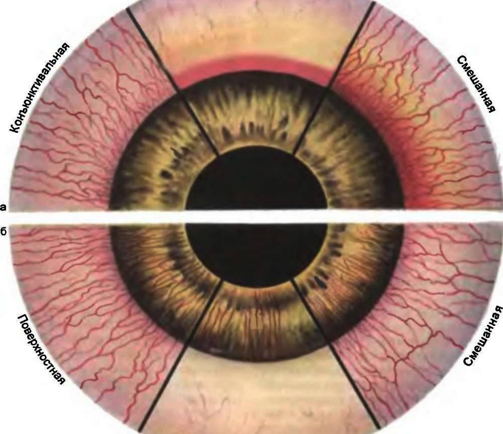 Укол в глаз: как делают, инъекции в глазное яблоко, уколы в висок