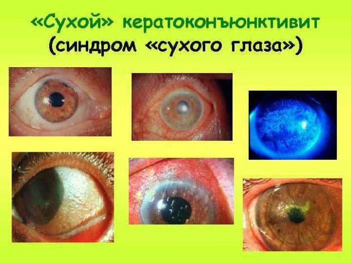 Синдром сухого глаза у ребенка: лечение, симптомы, причины