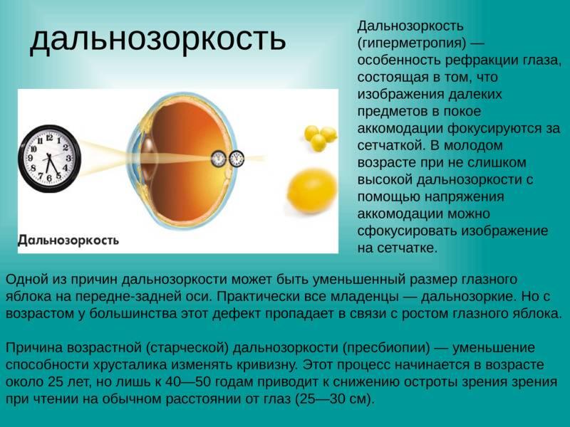 Как учеба портит зрение. главная причина близорукости у детей