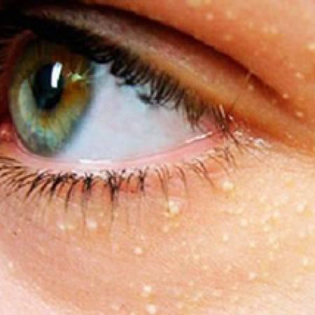 Жировики на веках глаз — как избавиться