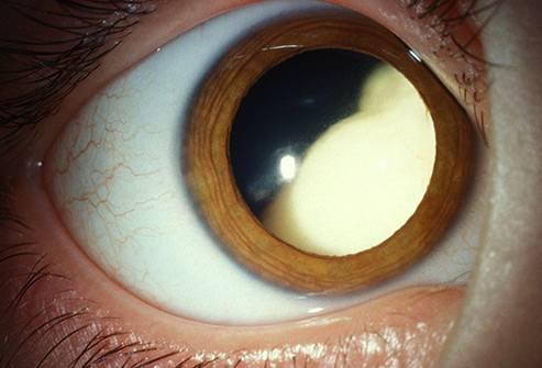 """Бельмо на глазу у человека: симптомы и лечение - """"здоровое око"""""""