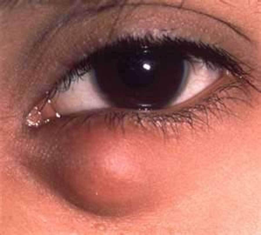 Особенности халязиона нижнего века: причины, симптомы, диагностика, лечение
